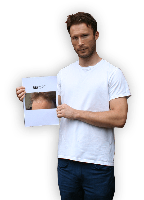 Download the Hair Loss eBook: Full version