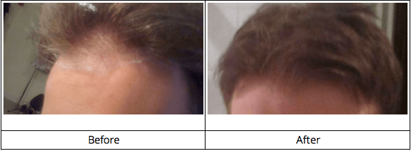 Hair growth before and after photos