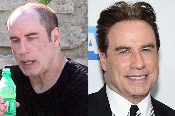 John Travolta hair transplant before and after