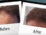 Stop receding hair line