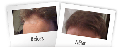 Before and after photos nicehair.org eBook