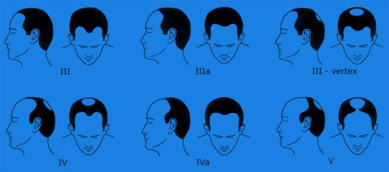 3 Weird Rules for Stopping Male Pattern Baldness - NiceHair