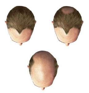 Male pattern baldness caused by DHT