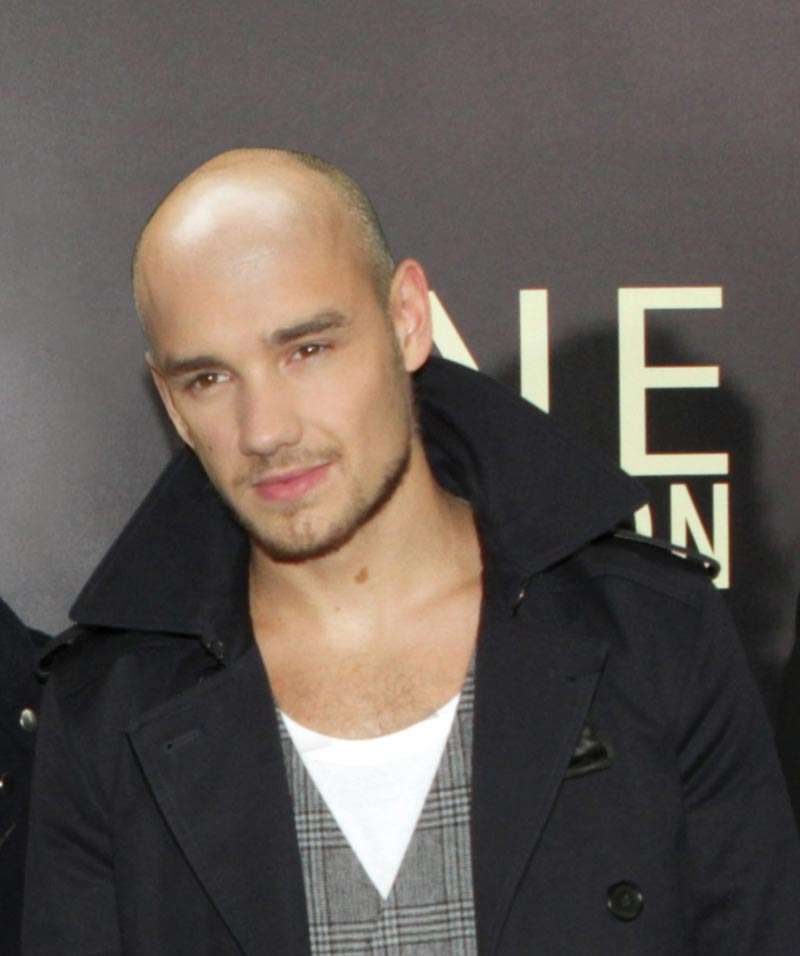 Liam Payne bald losing hair loss