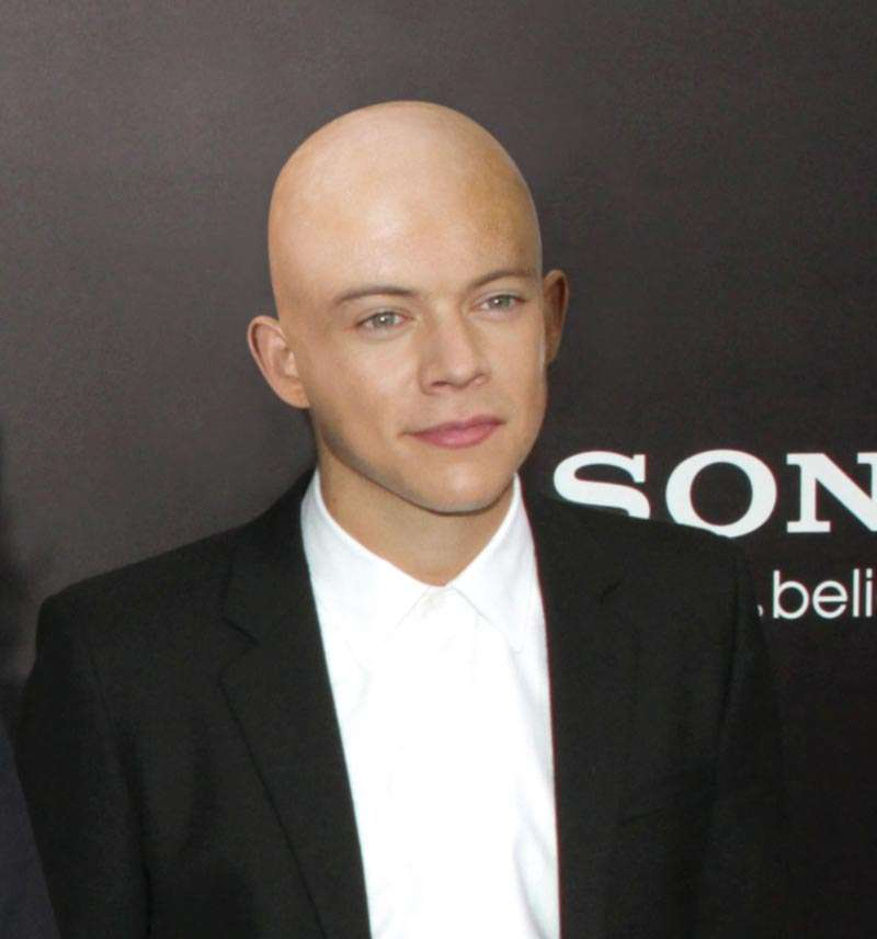 Harry Styles bald with no hair loss