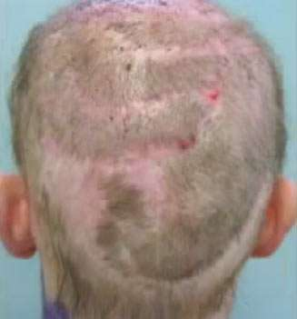 Pin by Hair Transplants Towson on HairTransplantsTowson