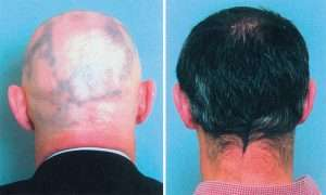 Before after rosemary oil hair treatment