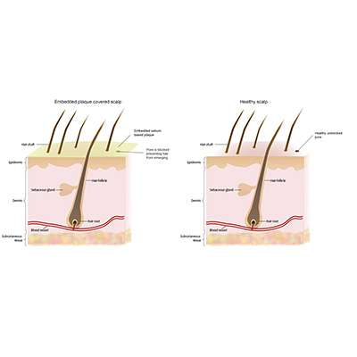 Remove DHT from scalp