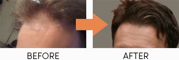Before and after nicehair.org ebook review