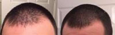 Before and after nicehair results