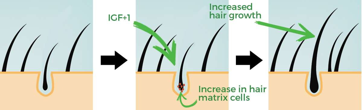 IGF1 hair growth