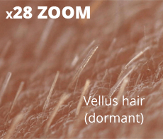 Vellus dormant hair