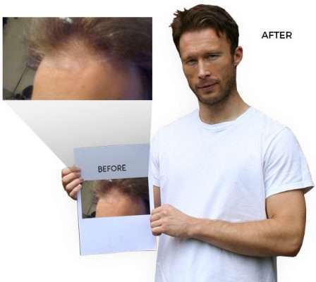 Chris Carter before and after nicehair