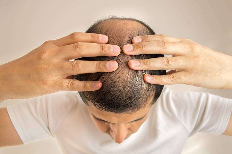 Detumescence for hair loss