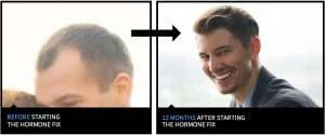 David Stanley hair loss before and after