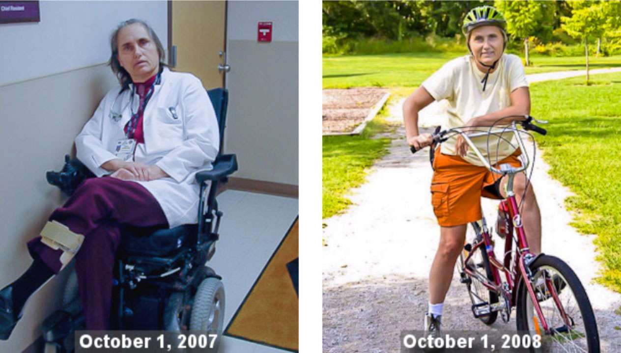Terry Wahls before and after