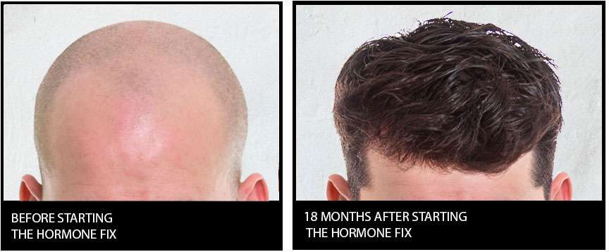 Before and after the Hormone Fix