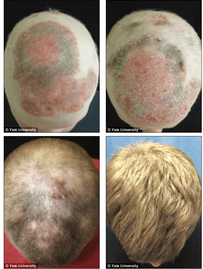 JAK Inhibitors for Hair Loss: A Breakthrough Cure?