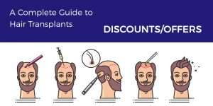Hair transplant discounts and offers
