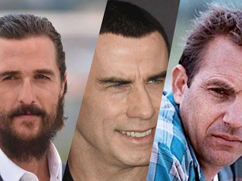 10 Celebrities Who Have Had Hair Transplants