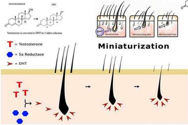 Scalp sensitivity to DHT