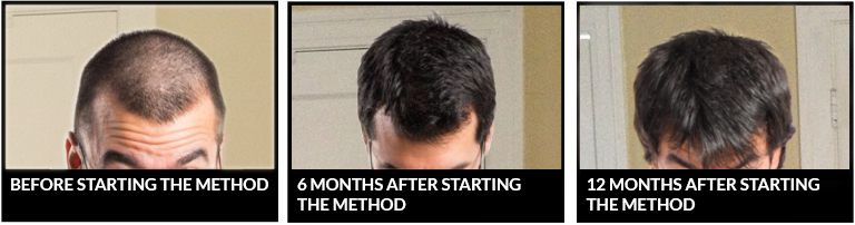 Before and after nicehair.org scalp regeneration method