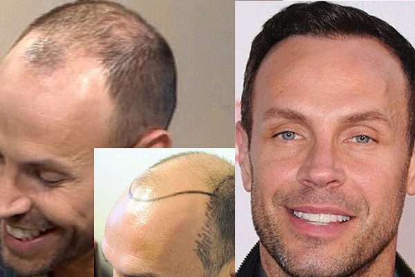 Jason Gardener before and after hair transplant