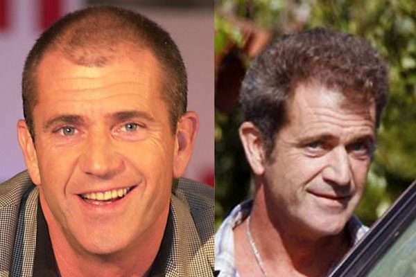Mel Gibson before and after hair transplant