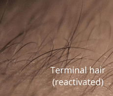 hairs-becomeing-terminal