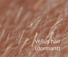 See through vellus dormant hair follicles