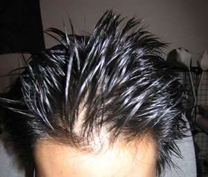 Hair gel hair loss