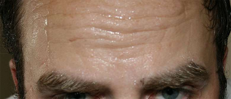 Sweat and Hair Loss: Is Sweat Bad for Your Hair?