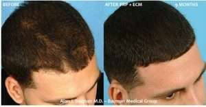 Before and after hair regrowth from PRP therapy