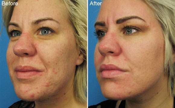 Plasma rich platelet therapy before and after acne