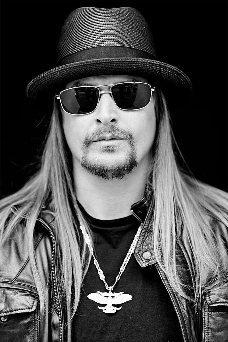 Kid Rock's Hair Is Scared