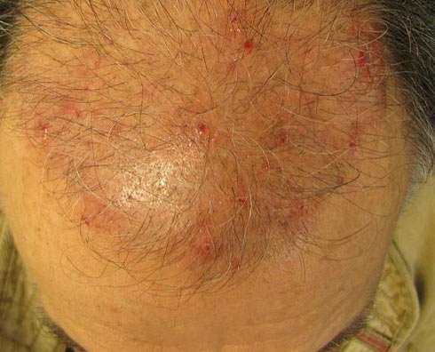 Hair transplant gone wrong lesions