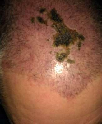 Hair transplant gone wrong necrosis scar