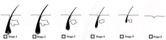 hair follicle miniaturization