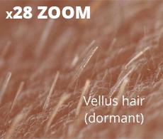 Vellus dormant hair