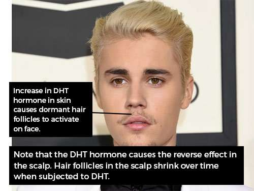Activation of hair due to DHT hormone