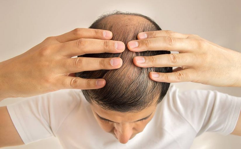 Detumescence Therapy for Hair loss: Does it Actually Work?