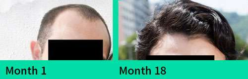 Alain Pamintuan before and after hair loss