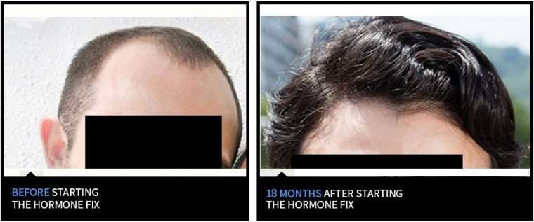 Before and after nicehair.org method