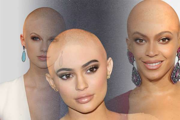 Famous women with hair loss