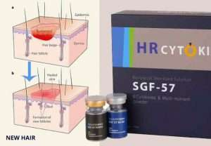 FGF-9 for hair loss