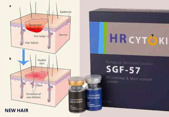 FGF-9 for hair loss