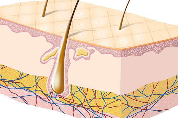 Increasing subcutaneous fat in the scalp to increase hair growth