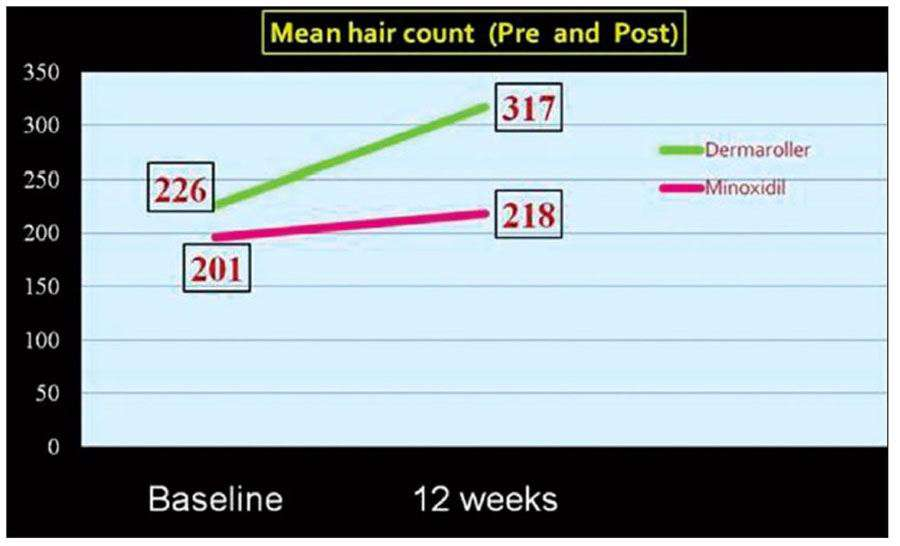 Mesotherapy hair growth results
