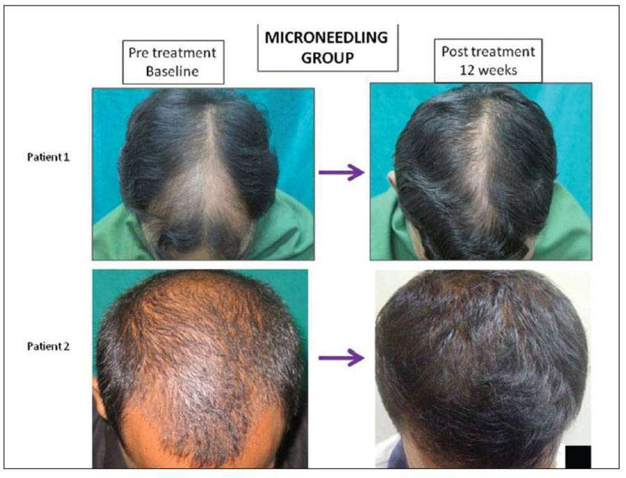 Microneedling hair growth results