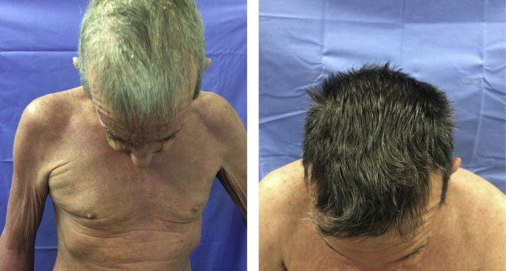 Before and after Secukinumab hair regrowth